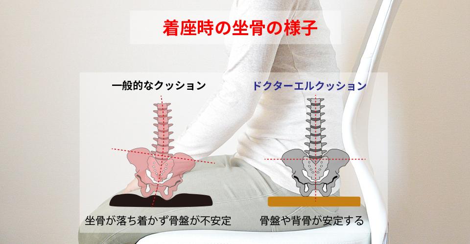 着座時の坐骨の様子 一般的なクッション・・・坐骨が落ち着かず骨盤が不安定(これが腰痛の原因!) ドクターエルクッション・・・骨盤や背骨が安定する