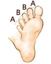 イラスト:チェック1 足の指が広げられるか